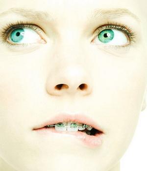 Cum sa eviti ruperea aparatului dentar in painea crocanta