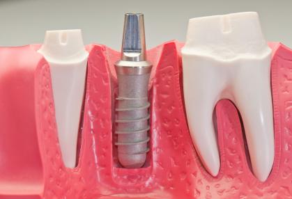 implant dentar ploiesti