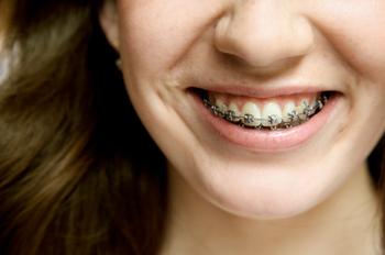 Apart dentar