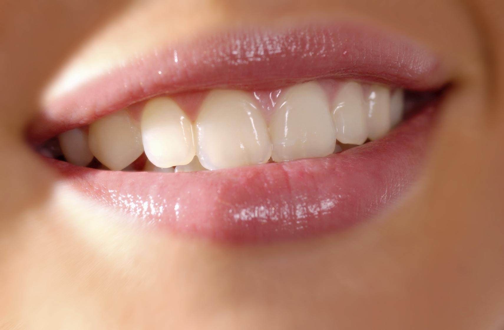 Medicii Oral Dent pot efectua reconstrucţii dentare şi pot stabili tratamente pentru bruxism