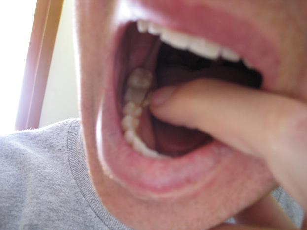 Ce trebuie să faci dacă îți pierzi un dinte