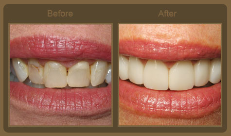 Teeth-Veneers