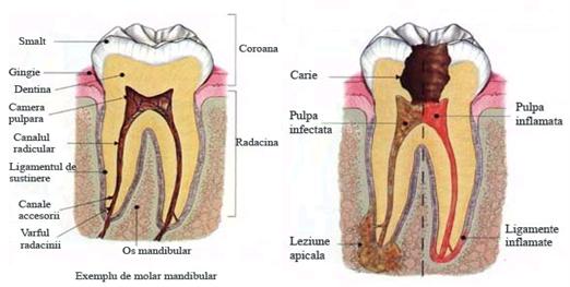 Scoaterea nervului dentar NU doare