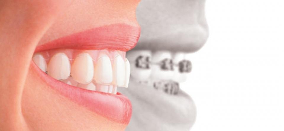 Aparatul dentar – igiena cu periuta interdentara