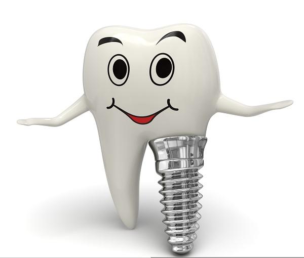 Implantul se poate insera imediat dupa extractie