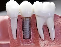 pivot.implant.articol