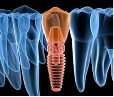 Implanturi dentare cu timp de așteptare redus
