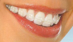 Promotie la aparate dentare