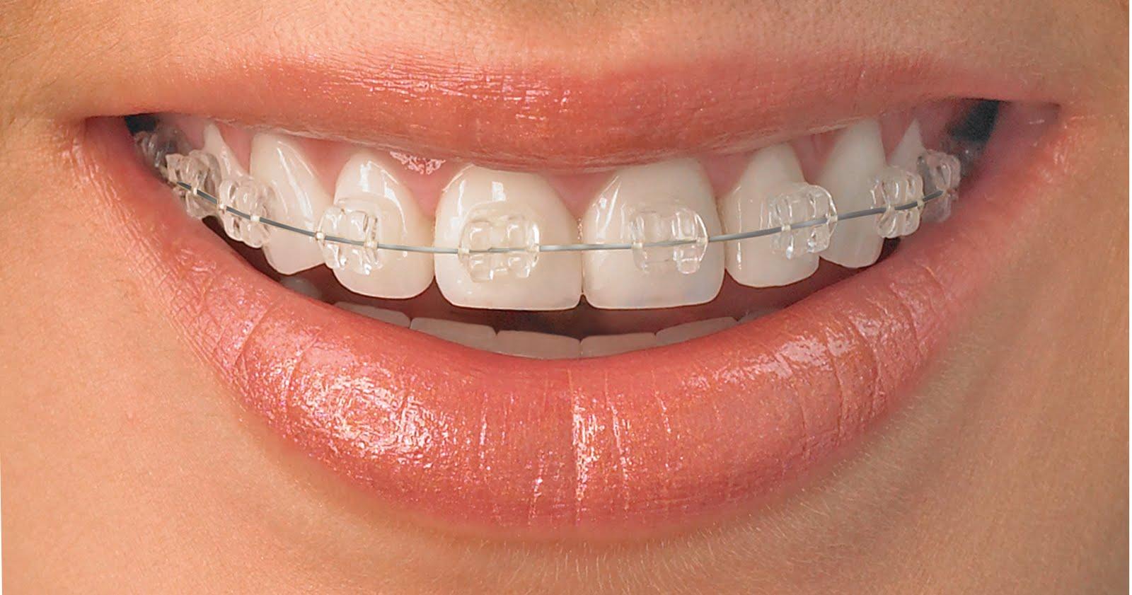 Ortodontia, calea spre un zambet perfect