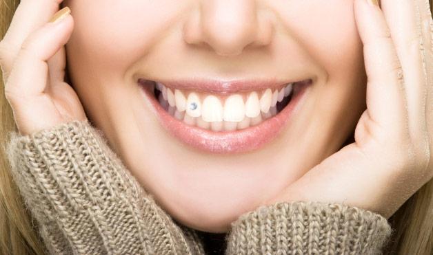 Majoritatea celor care aleg o bijuterie dentară temporară, aleg o bijuterie construită din cristale Swarowski.