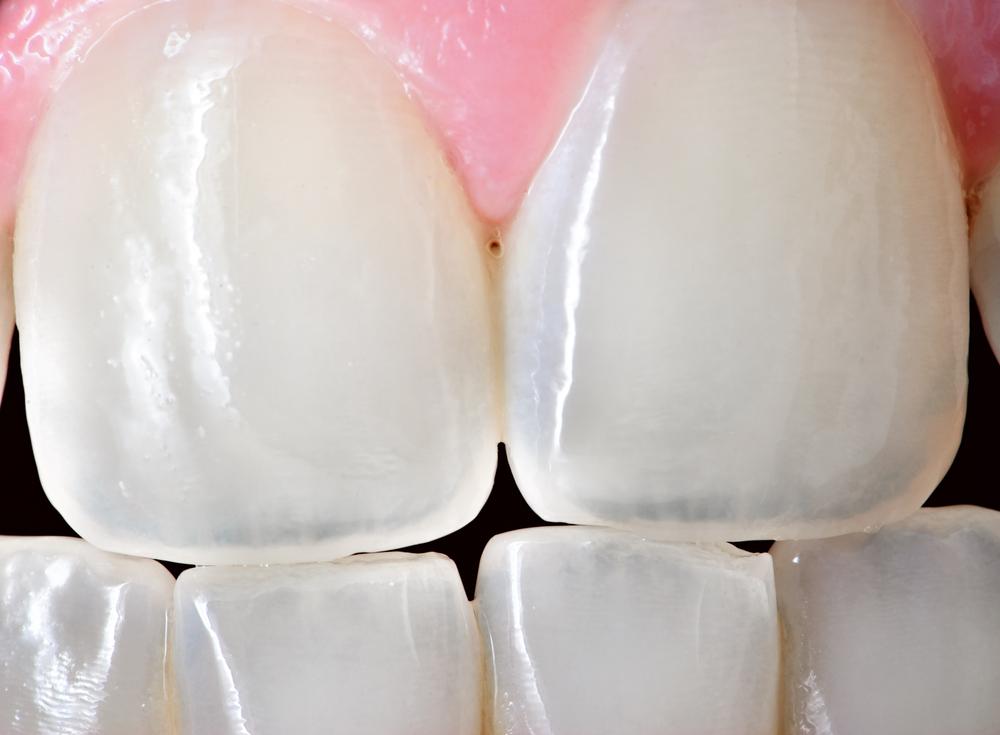 regenerarea dintilor